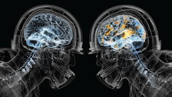 [FIDAF] Convegno medico sulla concussione cerebrale